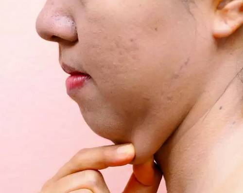 How to Lose Chin Fat