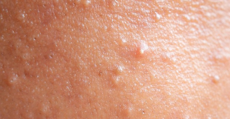 What Does Fungal Acne Look Like
