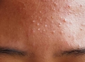 How to Treatment Fungal Acne